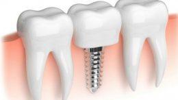 SGK Diş Tedavilerini, İmplant İşlemlerini Karşılıyor mu? 2019
